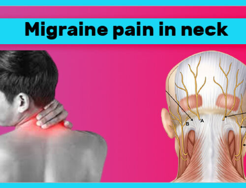 Migraine pain in neck | Neck Pain and Migraine Headache 2021